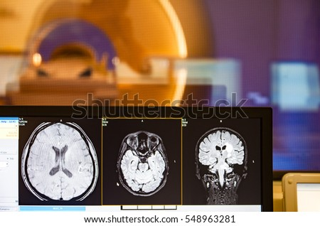 Tomograph brain head scan scanner MRI monitor