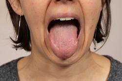Tongue, oral cavity close up