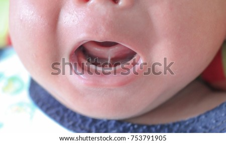 Tongue-tie patient , baby health problem no.1 , baby show tongue and gum