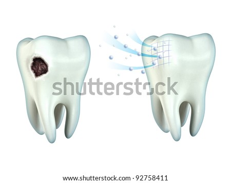 Tooth cavity and tooth remineralization. Digital illustration, clipping path included.