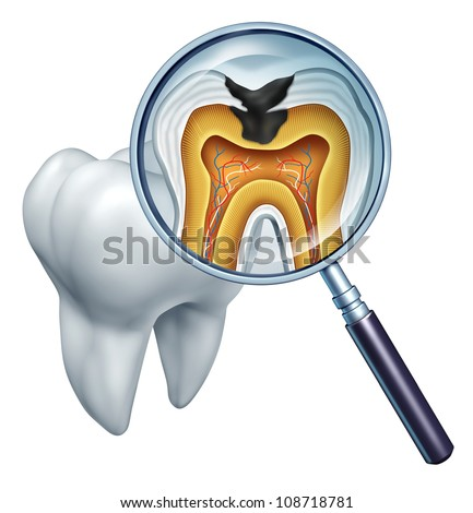 Tooth cavity close up and cavities symbol showing a magnifying glass with a cross section of a tooth anatomy in decay due to bacteria and acids in oral health care showing rotting and disease