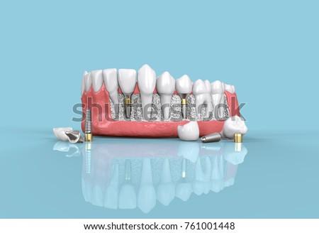 tooth dental implant model 3d illustration Foto d'archivio ©