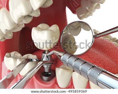 Tooth human implant. Dental implantation concept. Human teeth or dentures anddental tools. 3d illustration