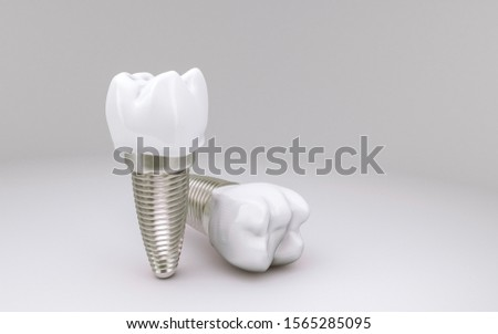 Tooth Implant concept on white background; 3D Illustration Foto d'archivio ©