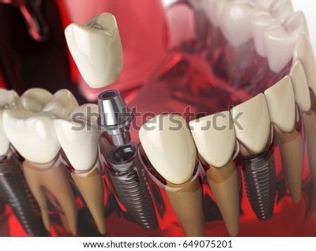 Tooth implant in the model human teeth, gums and denturas. Dental medicine stomatology concept. 3d illustration.