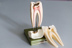 Tooth model for education in laboratory.