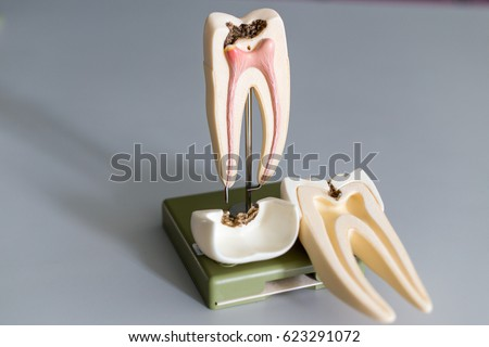 Tooth model for education in laboratory. #623291072