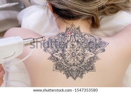 Top view hand of a beautician holds a laser device over a tattooed back of a girl to remove an unwanted tattoo. Concept of erasing tattoos as an expensive procedure in beauty parlor