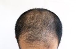 Top view of baldness men's head with thin hair on his top and forehead. Conceptual of hair problem on men's head.