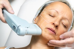 Top view of middle aged woman having cosmetic facial high intensity focal ultrasound treatment on chin.