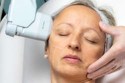 Top view of woman having cosmetic facial high intensity focal ultrasound treatment on side of face.