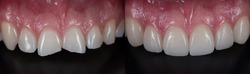 Treatment for front teeth fracture with dental ceramic veneers.