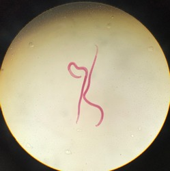 Trichinella spiralis adult in light microscope