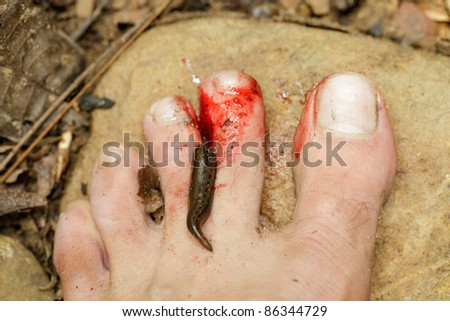 tropical leech biting human foot in asian rainforest
