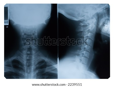 True colour X-Ray film of neck - front and side