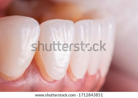 Try in procedure of dental ceramic veneers for lower teeth before installation. Porcelain laminated veneers for whiten and smile makeover. Stok fotoğraf ©