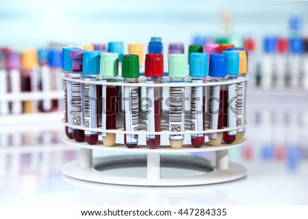tubes prepared for centrifuge machine in hematology laboratory / blood tubes with labels in circular tray