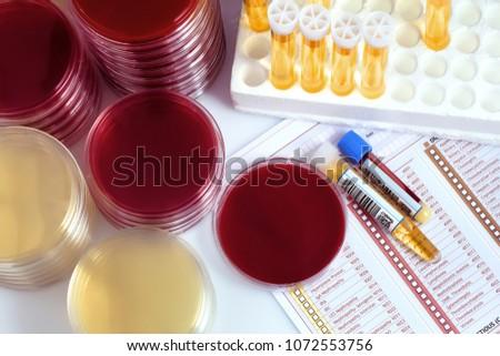 tubes samples and petri plates...