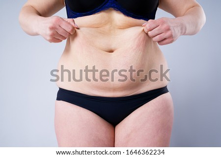 Tummy tuck, flabby skin on a fat belly, plastic surgery concept on gray background ストックフォト ©