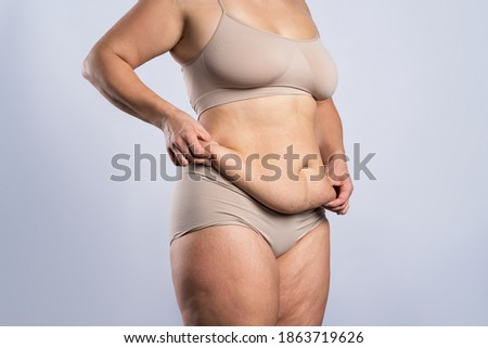 Tummy tuck, flabby skin on a fat belly, plastic surgery concept on gray background Foto d'archivio ©