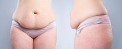 Tummy tuck, flabby skin on a fat belly, plastic surgery concept on gray background, composite image of two photos