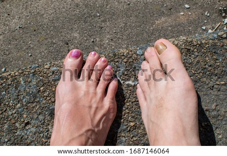two bare feet male and female pink painted veiny foot next to caucasian foot with yellow big toe