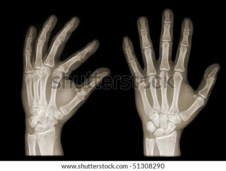two hands on x-ray isolated on black background