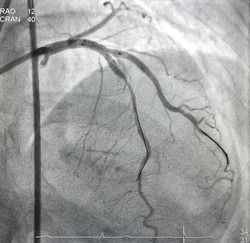 Two non-compliance balloons (NC balloon) inflated after coronary stent deployed at left anterior descending artery (LAD) and diagonal branch (DG). Kissing balloon technique.