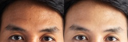 two pictures compared effect Before and After treatment. skin with problems of freckles , pore , dull skin and wrinkles around forehead before and after treatment to solve skin problem for better skin