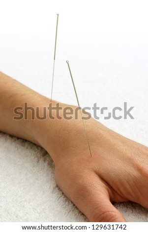 Two silver acupuncture needles inserted into the top of a hand resting on a white towel