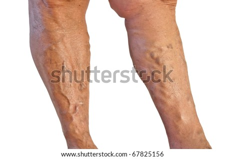 Two tanned legs with varicose veins on white background