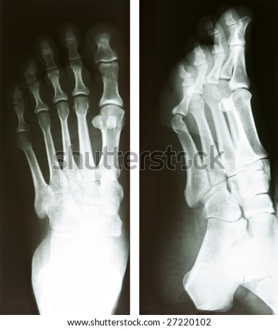 two x-ray of a human foot, heath and medical research