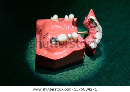 Typodont, the plastic moulage of human jaws and teeth, demonstrating tooth decay and fillings put in #1575084271