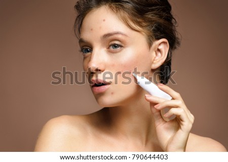 Ugly young girl with problem skin using treatment cream on beige background. Skin care concept