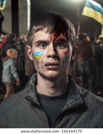 Ukrainian student beaten at the meeting with a broken head