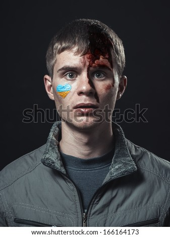 Ukrainian student beaten with a broken head