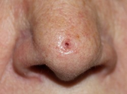 Ulcerated basal cell carcinoma on the nose of an elderly woman.