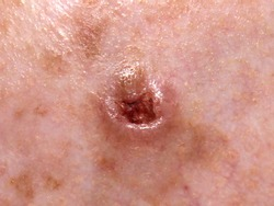 Ulcerated nodular basal cell carcinoma on a forehead of an elderly man.