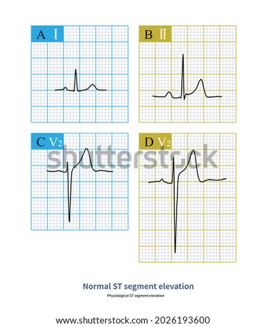 Under physiological conditions, the ST segment elevation of limb lead and left chest lead shall not exceed 1mm, and that of right chest lead shall not exceed 3mm.  Zdjęcia stock ©
