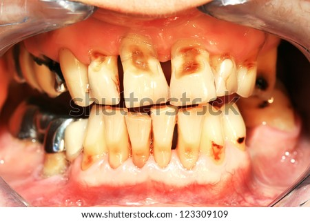 Unhealthy denture and  Frontal teeth abrasion result of incorrect teeth cleaning