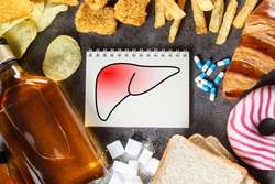 Unhealthy lifestyle and habits - risk of liver damage. Top view