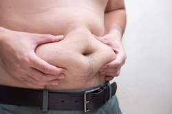 Unhealthy, Metabolism concept, Man gripping big belly with visceral or subcutaneous fats. Pose health risk.