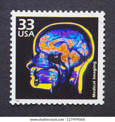UNITED STATES -Â?Â? CIRCA 1999: A postage stamp printed in USA showing an image of a brain scan, circa 1999.