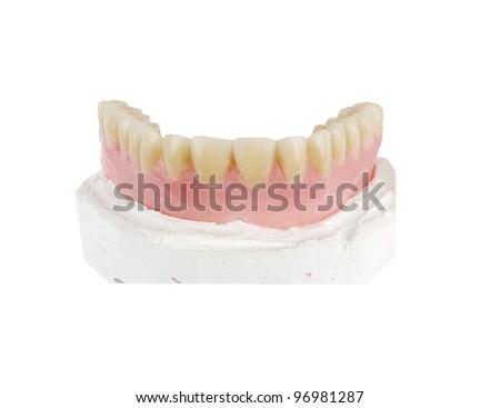 upper denture on a gypsum model on a white background