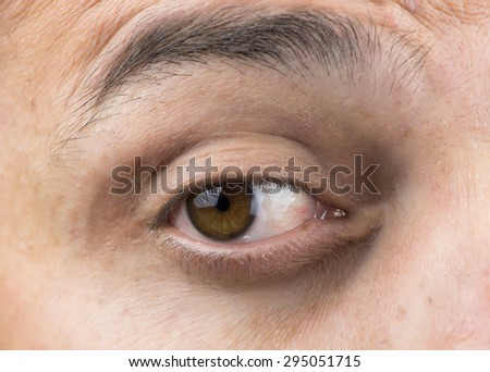 Upper part of males face closeup on eye #295051715