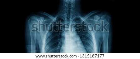 upper part x-ray image, x-ray image of upper part of child body show rib and shoulder both side and thoracic spine and arm  #1315187177
