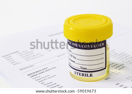 Urine sample in container with report