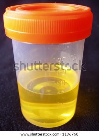 urine sample in specimen bottle isolated on black background