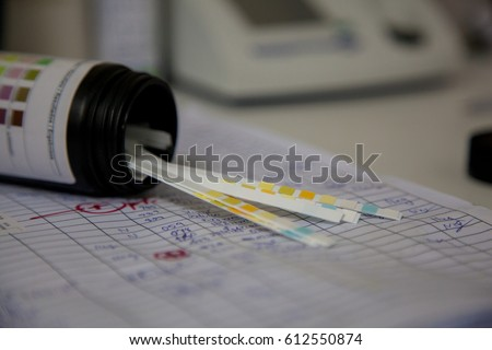 Urine strip test.  (Select point focus)