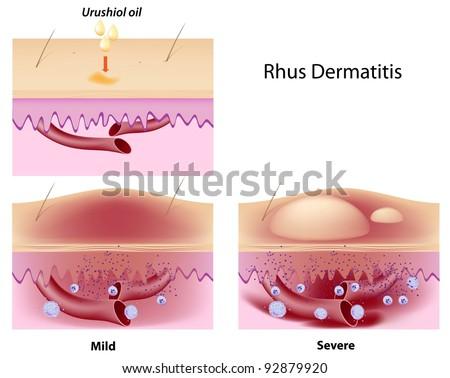 Urushiol oil induced contact dermatitis
